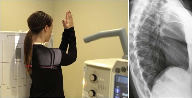 radiographic positioning