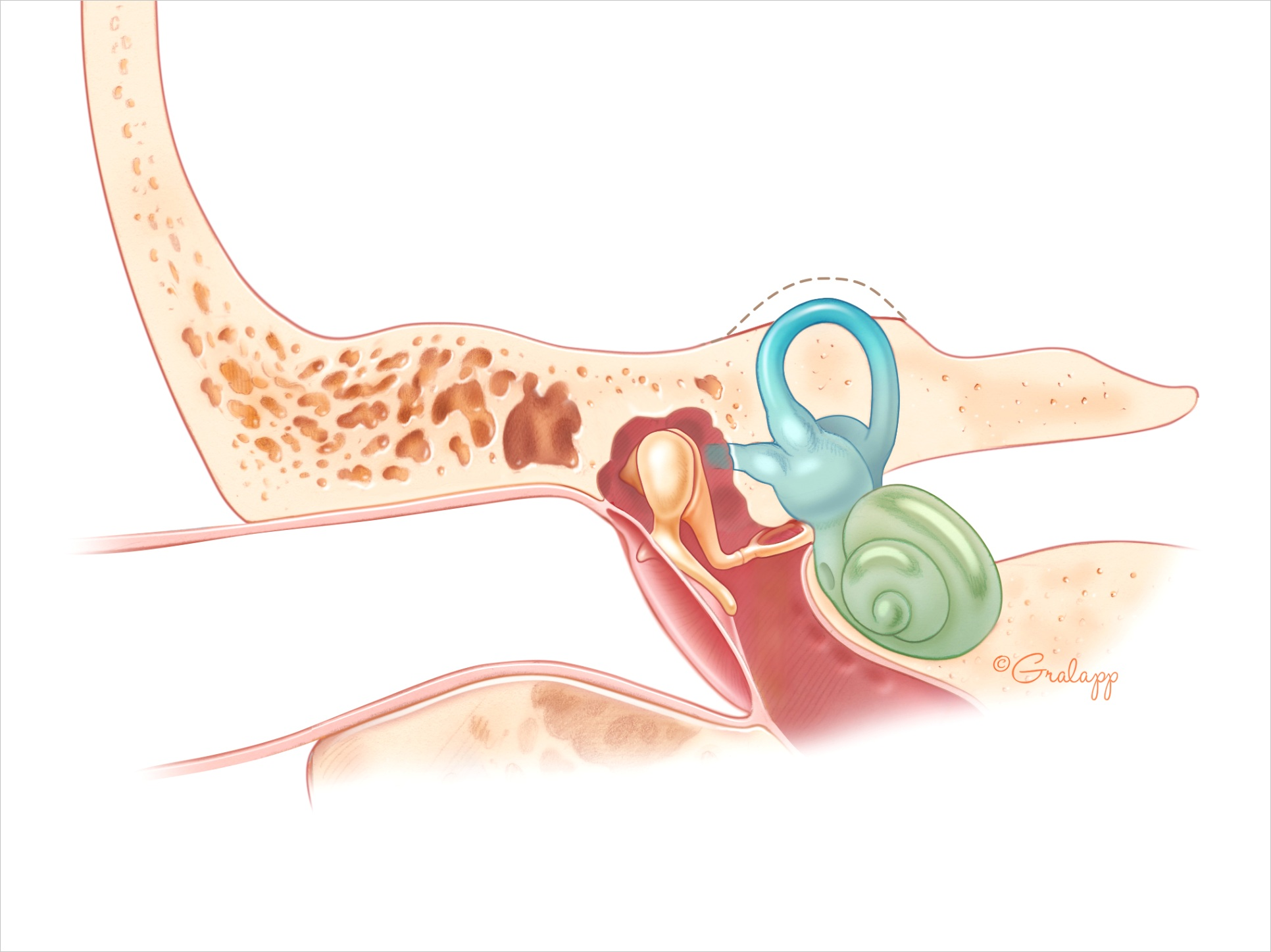 superior semicircular canal dehiscence